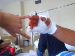 Отрезало половину подушечки пальца