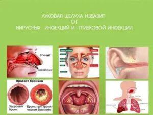 Тонзиллит и отит, воспаление
