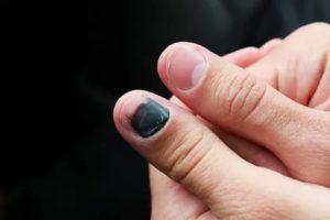 Поцарапала ногтем