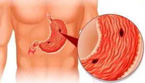 Сильные боли в кишечнике, запоры, эрозивный гастрит