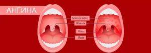 Месяц болит горло без температуры и красного горла