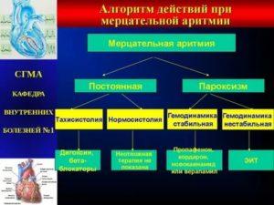 Сотагексал с кордароном при мерцательной аритмии