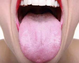 Белый налет на языке, жжение и сухость