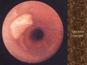 Опух мочеиспускательный канал