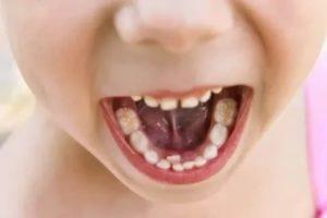 Коренной зуб вырос сзади молочного