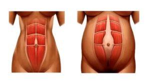 Беспокоит странный звук-щелчок в животе при напряжении мышц живота