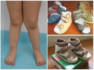 Серповидные стопы, ношение ортопедической обуви