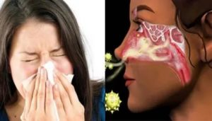 В носу запах горелого