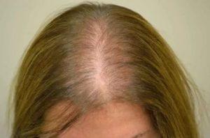 От приёма джес выпадают волосы что делать?