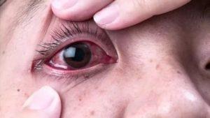 Щелчки или треск в глазах и глазнице