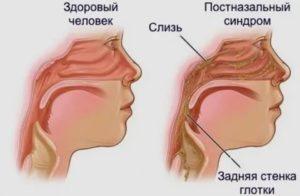 У беременной скапливается слизь в носоглотке и постоянно провоцирует рвоту