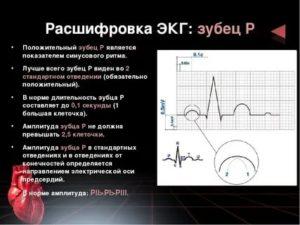 Какие проблемы с сердцем, расшифровать экг