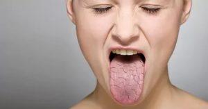 Поверхностный гастрит и сухость во рту