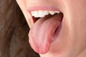 Нарост на корне языка, как будто растёт второй язык