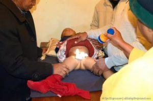 Сделали обрезание сыну
