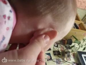 Шишка за ухом и на шее у ребенка