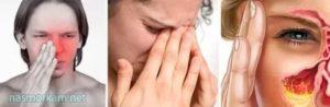 Течет жидкость из носа по утрам
