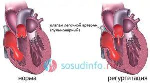 Регургитация на клапане легочной артерии 2 степени