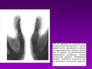 Остеоэпифизеолиз основных фаланг 3,4,5-го пальцев кисти
