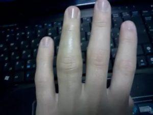 Суставной перелом безымянного пальца руки