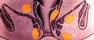 Парапроктит в стадии инфильтрации без гноя