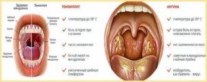 Желтый налёт и боль в горле