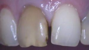 Потемнела десна над зубом после удаления нерва