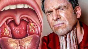 Боль глубоко в горле
