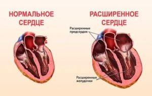 Полости сердца расширены что это значит