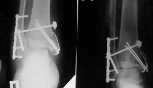 Удаление винтов после операции на голеностопе