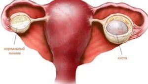 Лечение эндометриоза Визанной, киста яичника