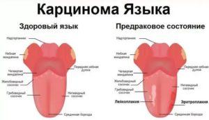 Боль у корня языка слева