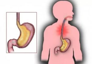 Газы после антибиотиков, горит пищевод, изжога