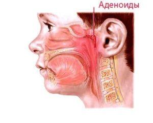 Острый синусит, аденоиды 1-2 степени