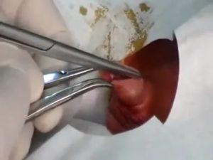 Гной после лазерного обрезания