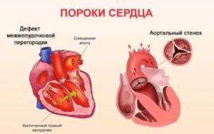 Как жить с пороком сердца?