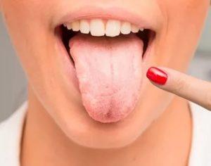 Жжение языка, трещины, отпечатки зубов на языке