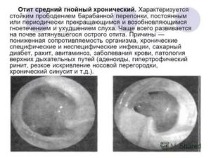 Острый катаральный отит и назначение флемоклав