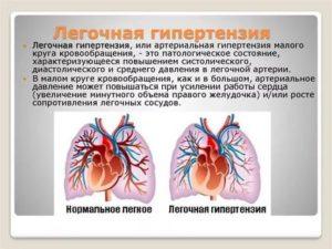 Лёгочная гипертензия: есть или нет