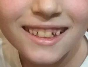 Очень медленно растет зуб у ребенка 8 лет