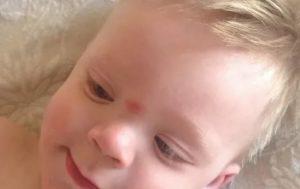 Шишка на переносице у ребёнка в 4 месяца