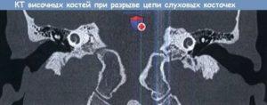 Разрыв цепи слуховых косточек