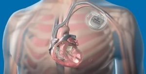 Аппарат кардиовертер-дефибриллятор