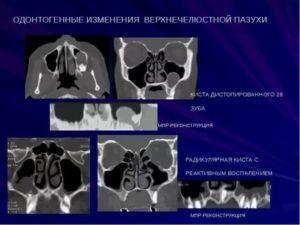 Киста гайморовой пазухи. Данные МРТ и КТ разнятся