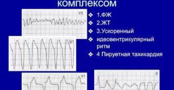 Тахикардия и нарушение адаптации QT