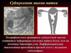 Миома с деформацией полости матки
