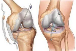 Боль после операции на ПКС