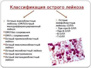 Орви или лейкоз