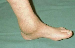 Опухла ступня после перелома, артроз голеностопного сустава