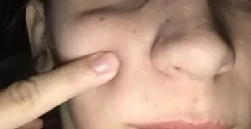 Уплотнение на щеке у ребенка